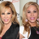 Adrienne Maloof Plastic Surgery Before and After Photos