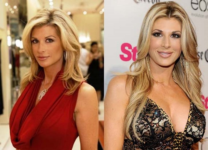 Alexis Bellino Nose Job Surgery Before and After Photos