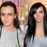 Ali Lohan Plastic Surgery Before and After Photos