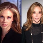 Ally Walker Plastic Surgery Face Before and After Photos