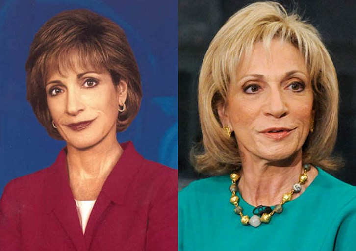 Andrea Mitchell Plastic Surgery Before and After Pictures