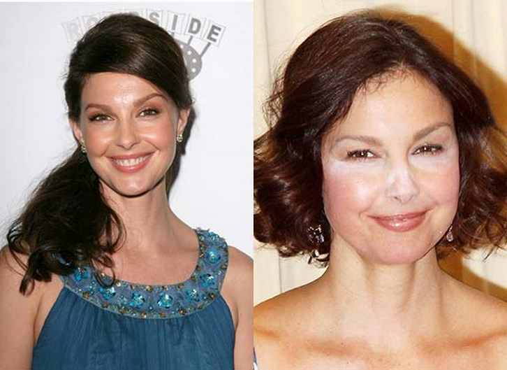 Ashley Judd Plastic Surgery Before and After Photos