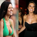 Audrina Patridge Plastic Surgery Breast and Lips Before After Photos