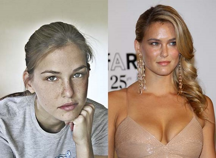 Bar Refaeli Plastic Surgery Nose Job Before and After Photos