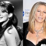 Barbra Streisand Plastic Surgery Before and After Photos