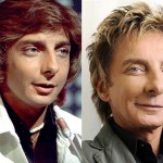 Barry Manilow Plastic Surgery Before and After Photos
