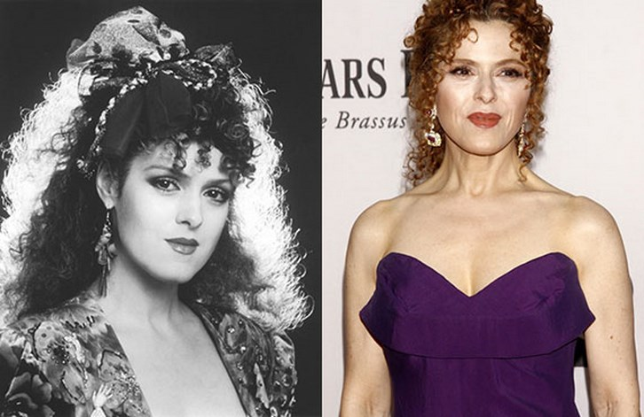 Bernadette Peters Plastic Surgery Before and After Pictures