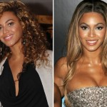 Beyonce Plastic Surgery Before & After Photos