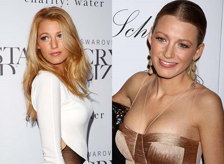 Blake Lively Boob Job Before and After Photos