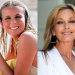 Bo Derek Plastic Surgery Before and After Photos
