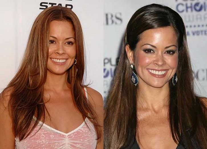 Brooke Burke Plastic Surgery Face Before and After Photos