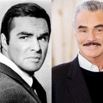 Burt Reynolds Plastic Surgery Before and After Images