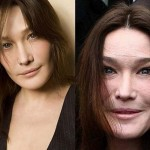 Carla Bruni Plastic Surgery Gone Wrong Before and After Photos
