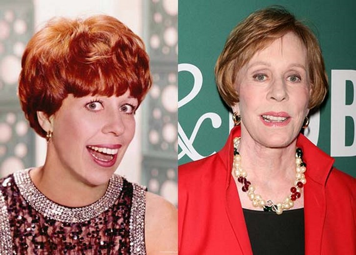 Carol Burnett Plastic Surgery Before and After Images