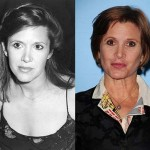 Carrie Fisher Plastic Surgery Before and After Photos