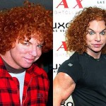 Carrot Top Plastic Surgery Before and After Photos