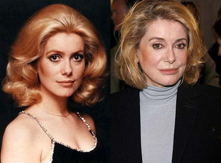 Catherine Deneuve Plastic Surgery Before and After Photos