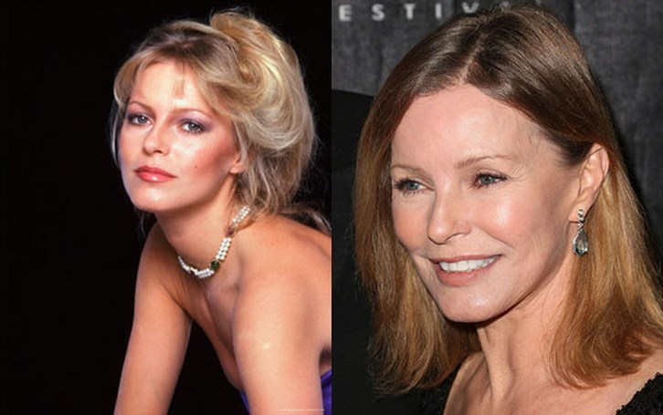 Cheryl Ladd Bad Plastic Surgery Before and After Photos