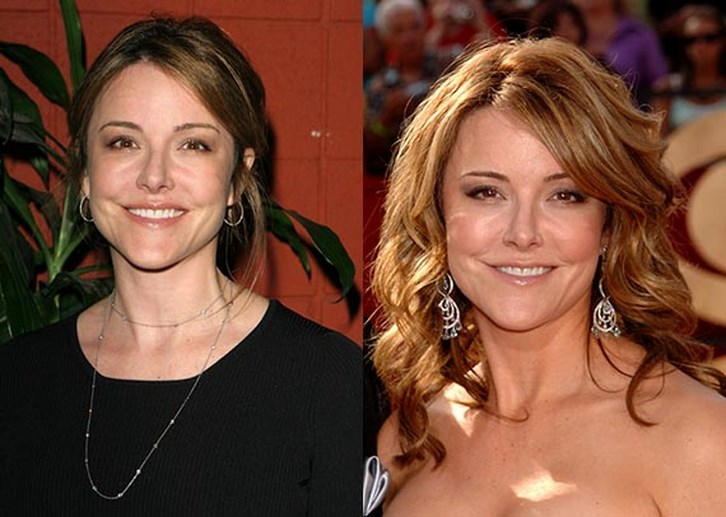 Christa Miller Plastic Surgery Before and After Photos