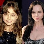 Christina Ricci Plastic Surgery Lips and Face Before After Pictures