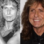 David Coverdale Cosmetic Surgery