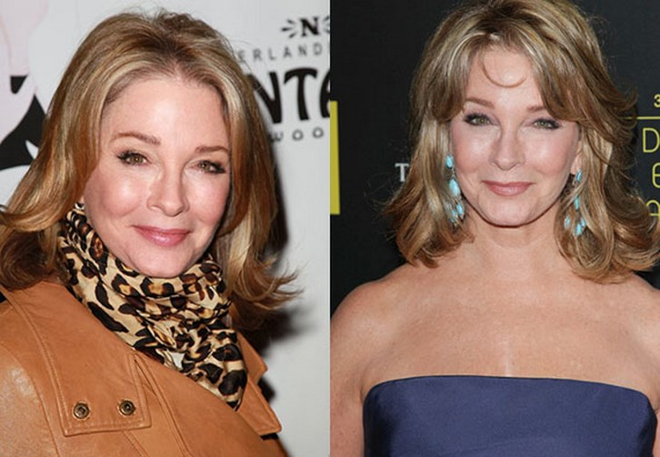 Deidre Hall Plastic Surgery Photos Before and After