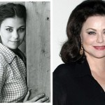 Delta Burke Plastic Surgery Before and After Pictures