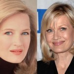 Diane Sawyer Plastic Surgery Before and After Photos