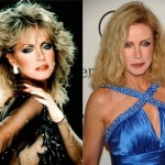 Donna Mills Plastic Surgery Before and After Photos