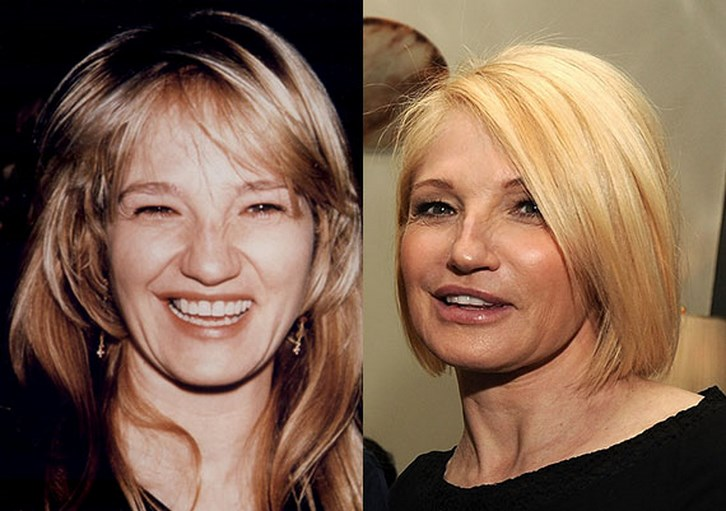 Ellen Barkin Plastic Surgery Before and After Photos