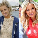 Emily Maynard Plastic Surgery Before and After Photos