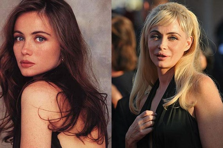 Emmanuelle Beart Plastic Surgery Before and After Photos