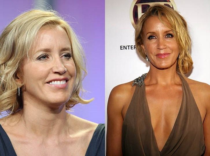 Felicity Huffman Plastic Surgery Before and After Images