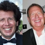 Garry Shandling Plastic Surgery Before After Photos