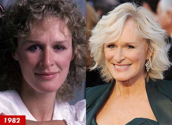 Glenn Close Plastic Surgery Before and After Photos