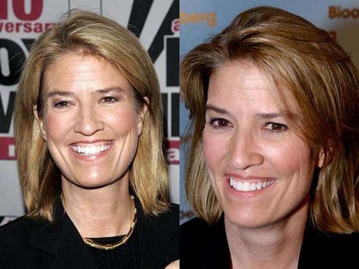 Greta Van Susteren Plastic Surgery Before and After Photos
