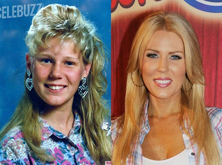Gretchen Rossi Plastic Surgery Before and After Images