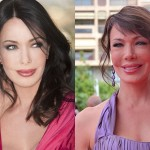 Hunter Tylo Plastic Surgery Before and After Photos