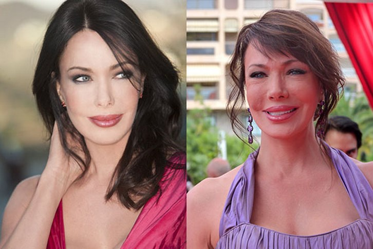 Hunter Tylo Plastic Surgery