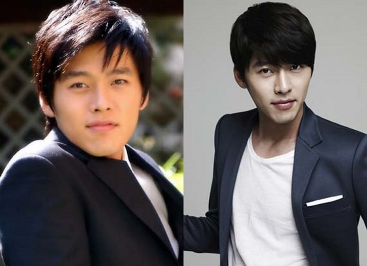 Hyun Bin Plastic Surgery Before and After Photos