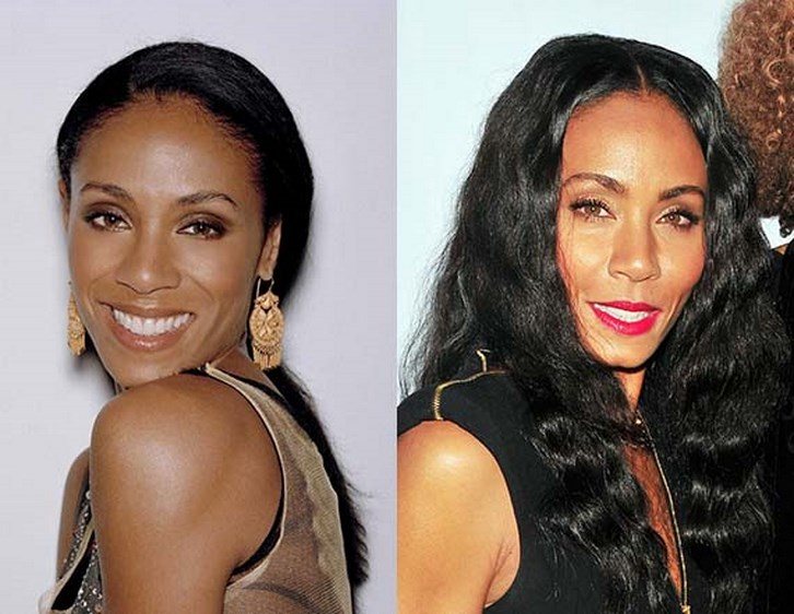 Jada Pinkett Smith Plastic Surgery Cheek Before and After Photos