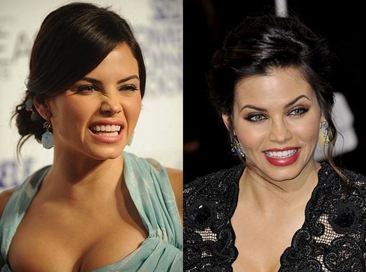 Jenna Dewan Plastic Surgery Before and After Photos