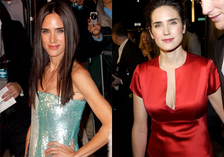 Jennifer Connelly Breast Reduction Surgery Before and After