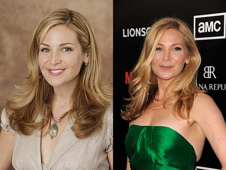 Jennifer Westfeldt Plastic Surgery Before and After Photos