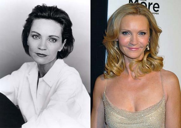 Joan Allen Plastic Surgery Before and After Photos