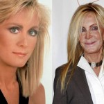Joan Van Ark Plastic Surgery Disaster, Gone Wrong Photos