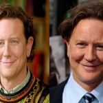 Judge Reinhold Plastic Surgery