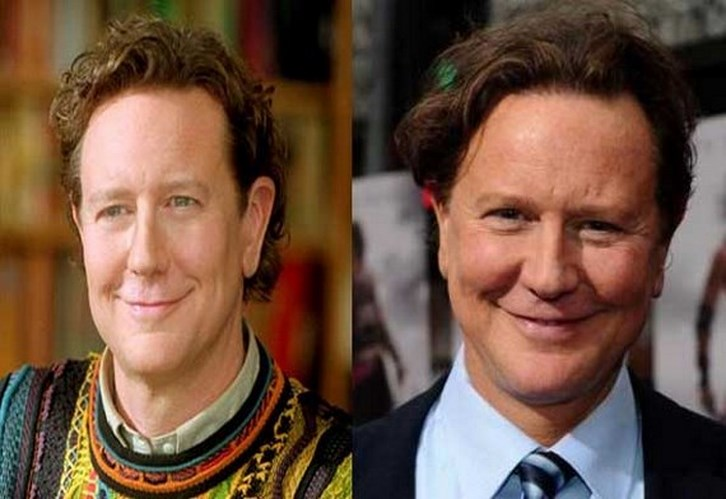 Judge Reinhold Before After Plastic Surgery Photo