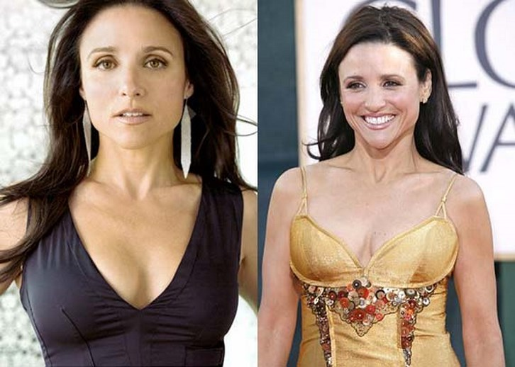 Julia Louis Dreyfus Plastic Surgery Before and After Photos