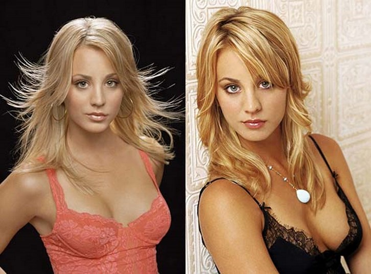 Kaley Cuoco Breast Augmentation Before and After Photos